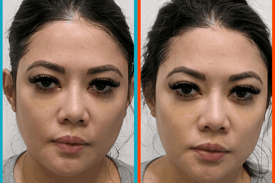 Before & After HIFU Facelift in Milpitas